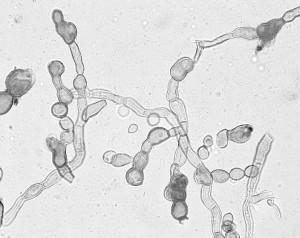 Cladosporium cladosporioides